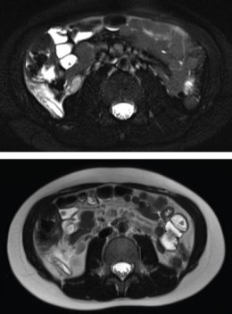 MRI images showing two axial views of retrocecal appendicitis (the second with fat saturation to make the inflammation more easily seen). The appendicitis is located at the posterior aspect on the right of the patient (reader's lower left).